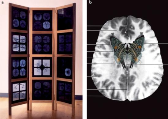 susan aldworth (2001) entre uma coisa e um pensamento E fMRI Borboleta